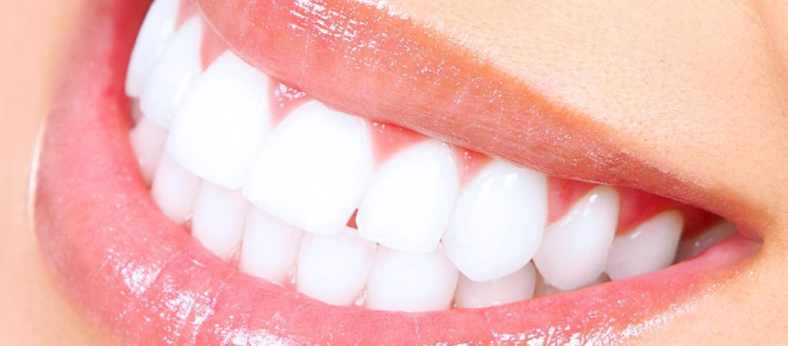 Teeth Whitening Female Picture