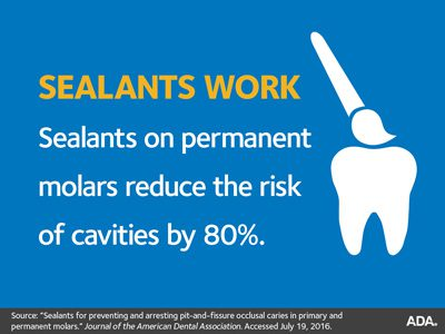 Dental sealants work