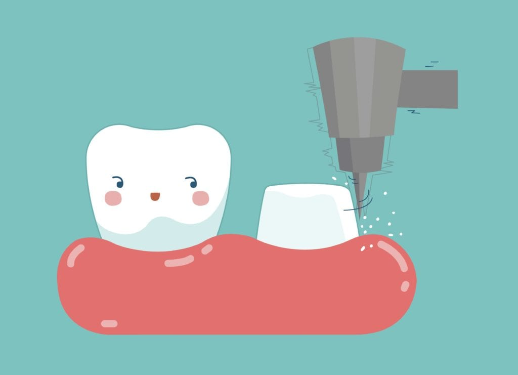 Cartoon of a tooth being prepared for a dental crown