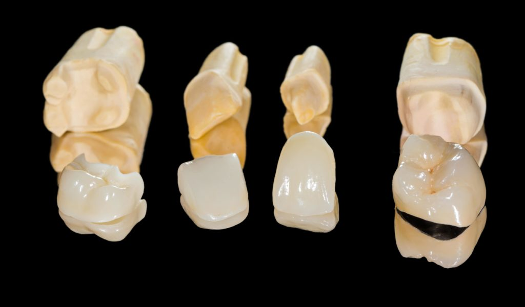 Different dental restorations laid out next to one another on a black background