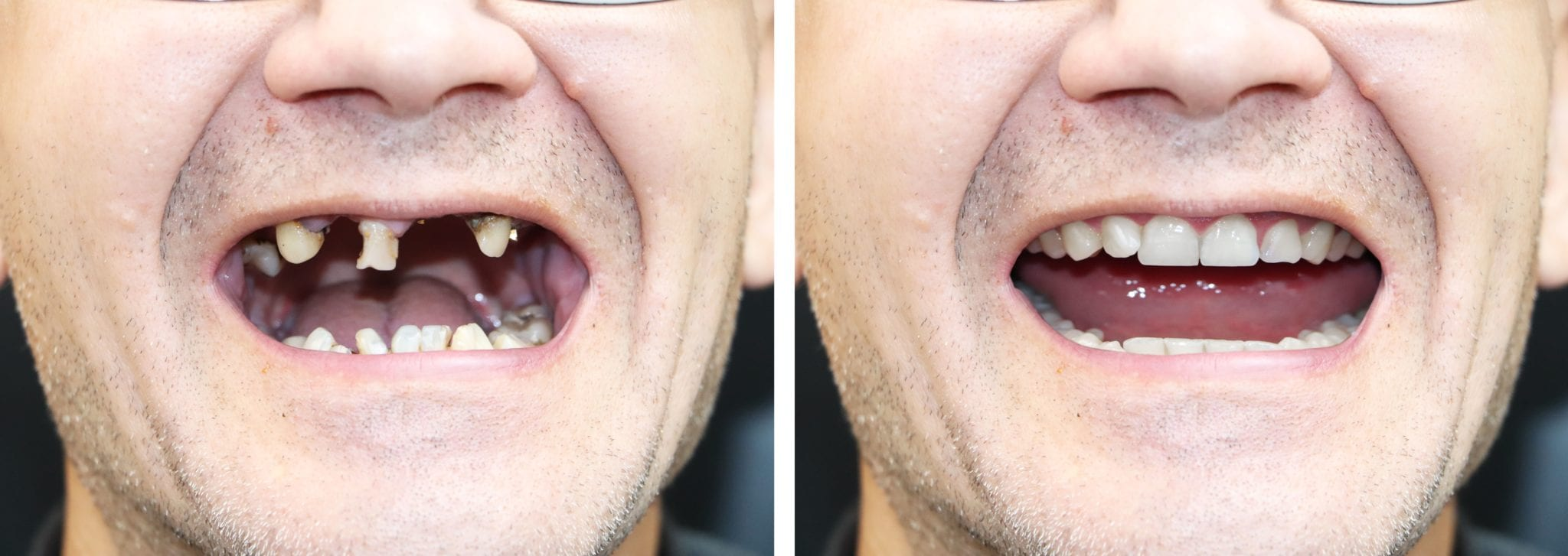Before and after of a full mouth reconstruction