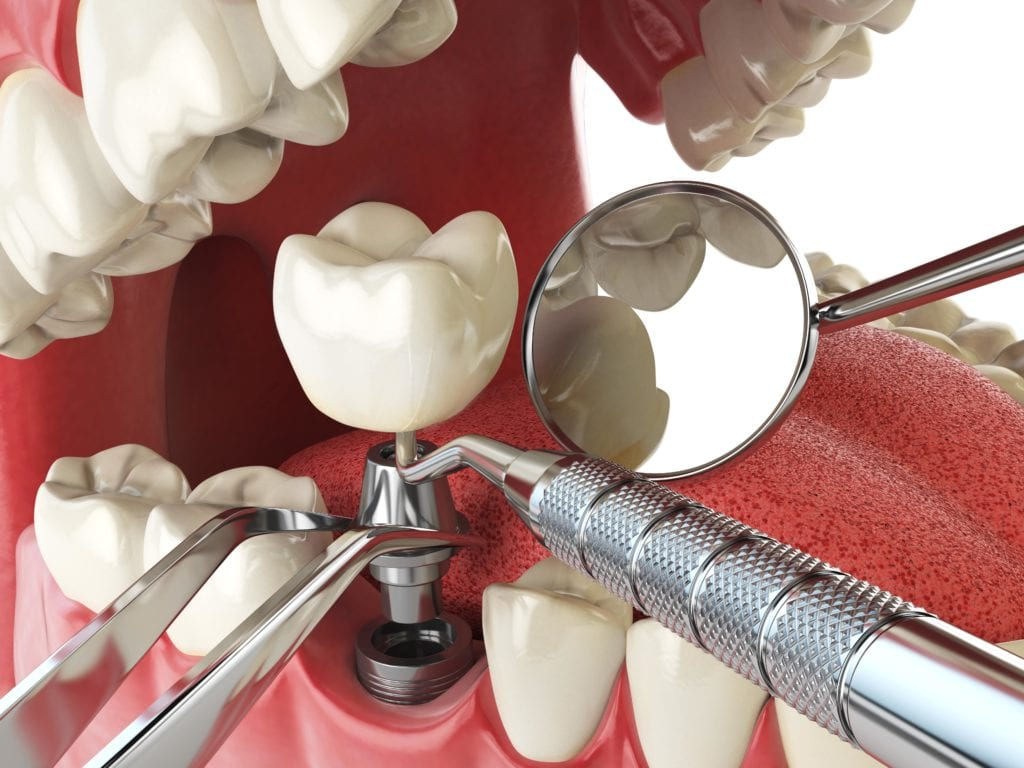Placing a dental implant