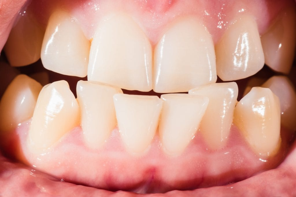 Close up of imperfect teeth