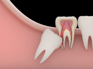 Problems caused by impacted wisdom teeth include.Erosion cavity(rendering)