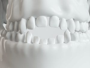 Model of child's teeth with an open bite