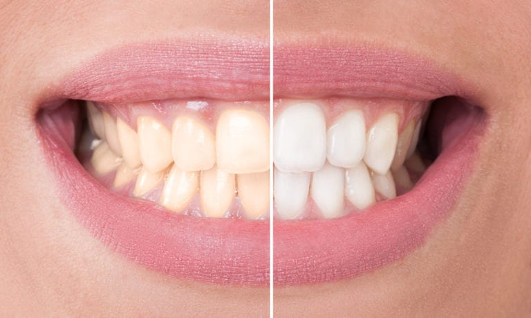 Teeth Whitening in Tempe