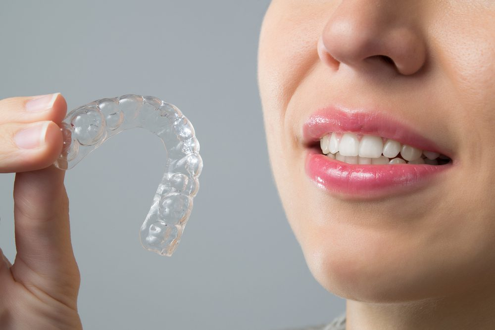 Invisalign - Alameda Dental Care in Tempe, AZ