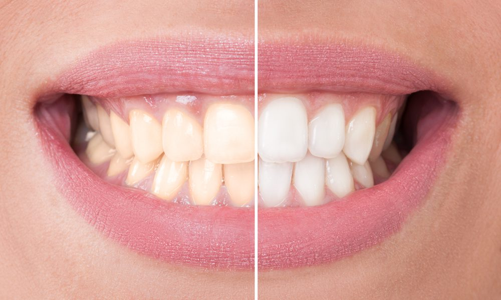 Same Day Teeth Whitening - Alameda Dental Care in Tempe, AZ