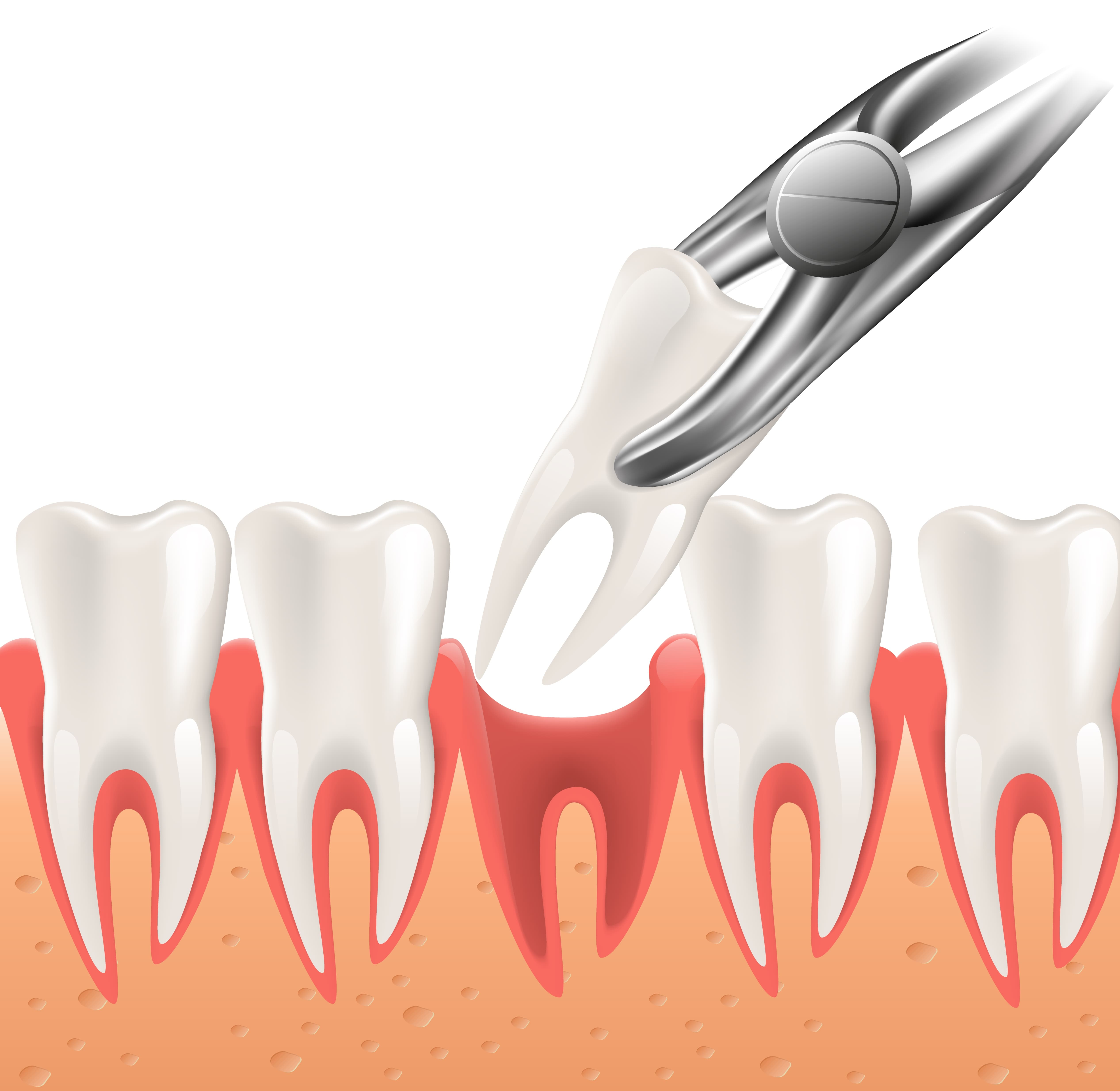 Tooth Extraction in Gilbert, AZ