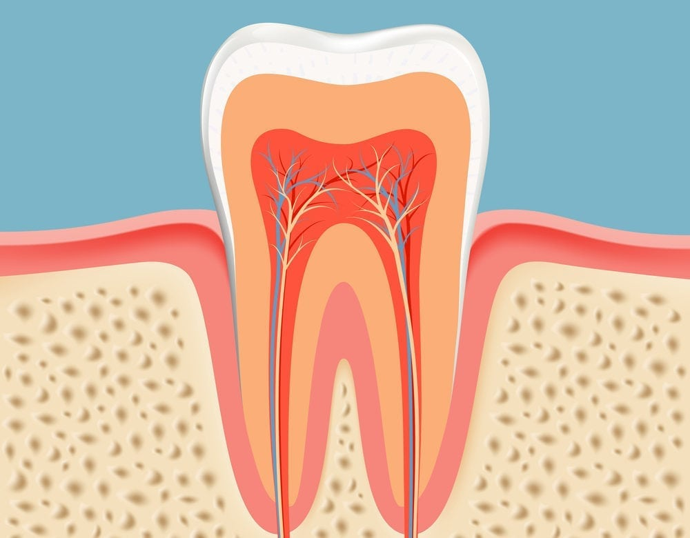 root canal treatment