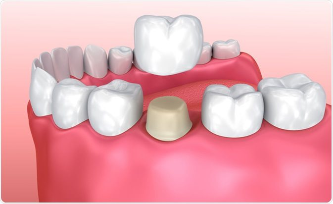 Dental Crowns In Mesa, AZ