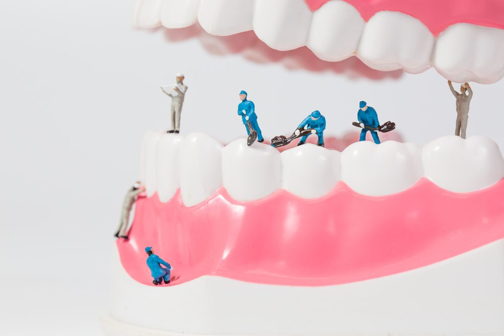 Miniature people or small figure worker cleaning tooth model