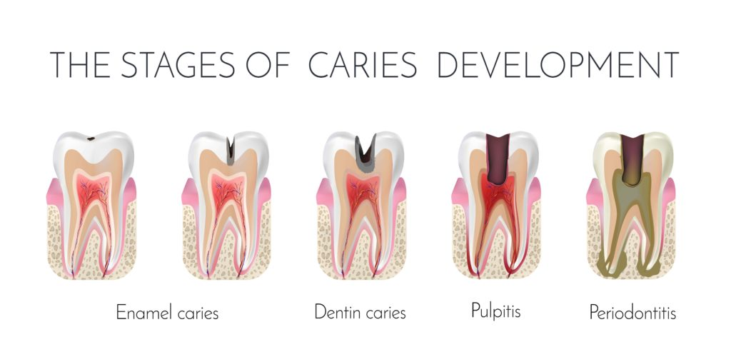 Diagram showing the various stages of cavity development