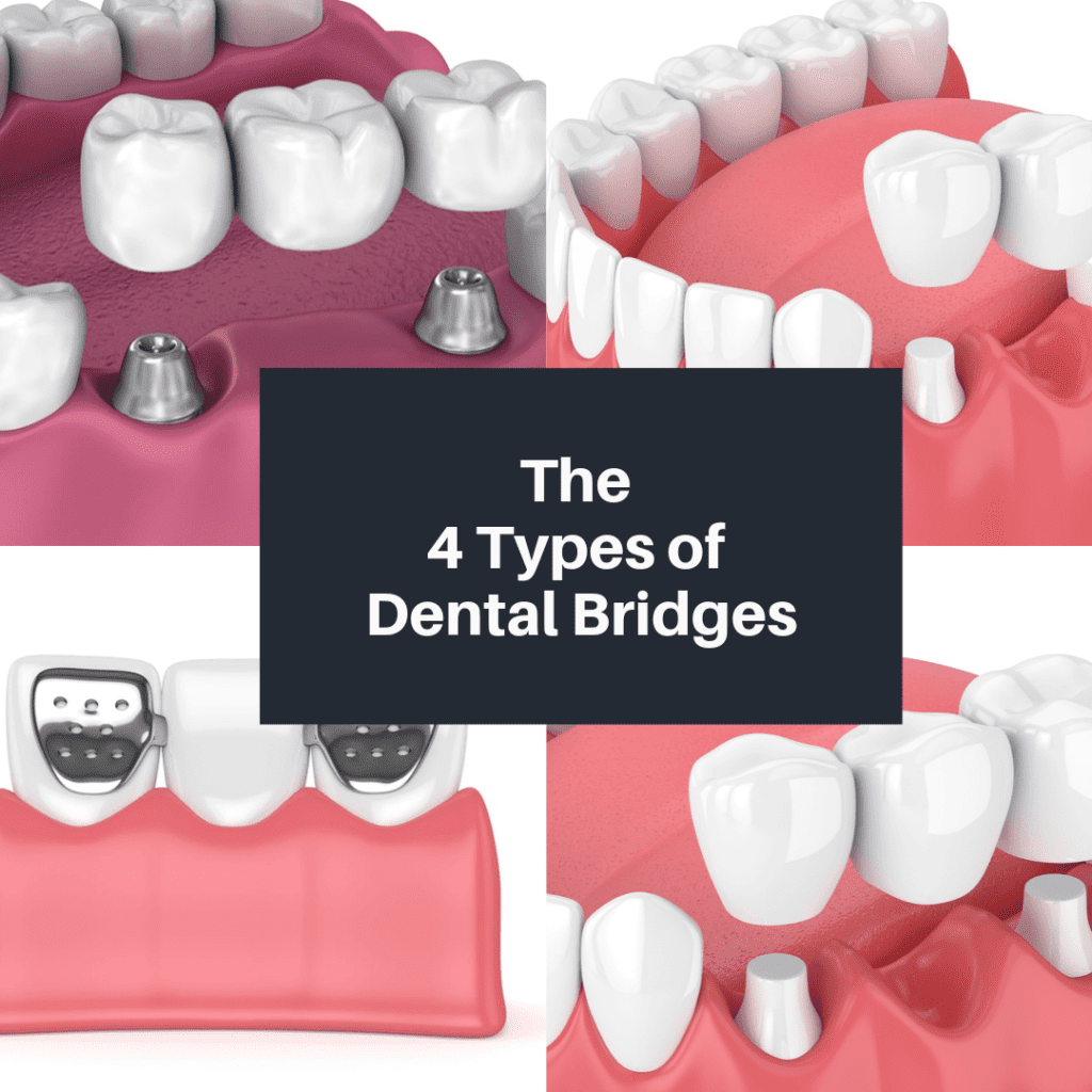 The 4 Types of Dental Bridges