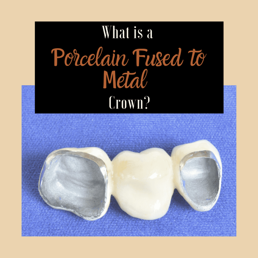 What is a Porcelain Fused to Metal Crown