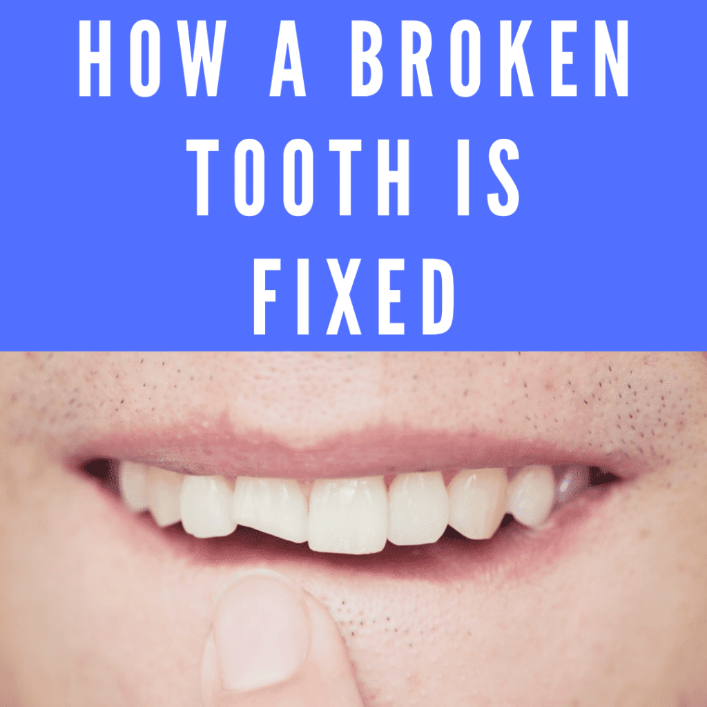 How a Broken Tooth is Fixed