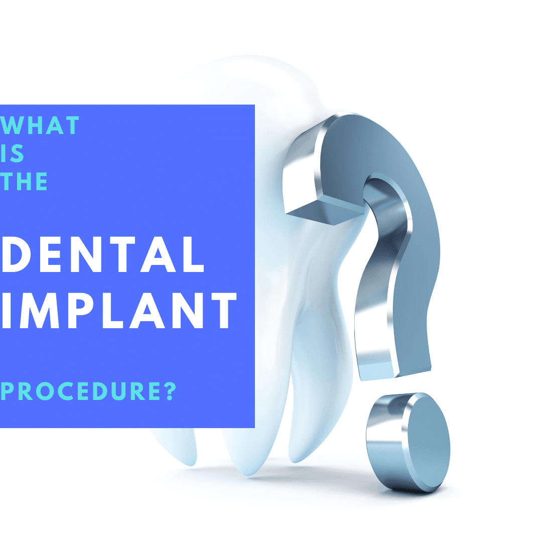 What is the Dental Implant Procedure