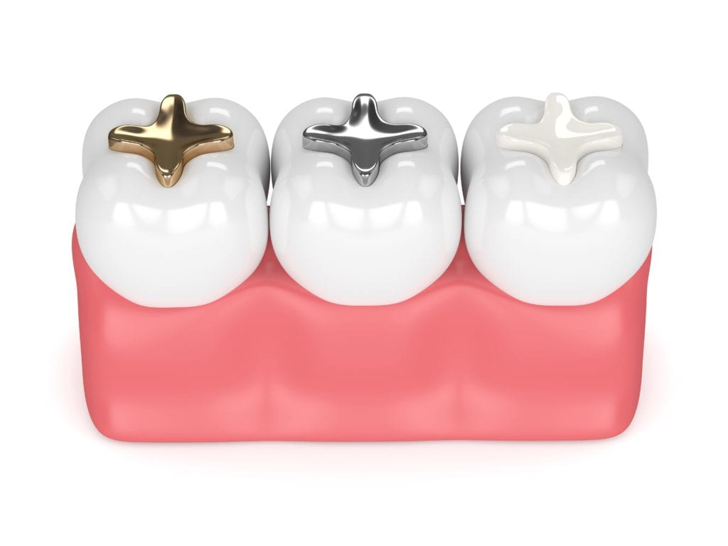 Dental fillings made from gold, amalgam, and composite