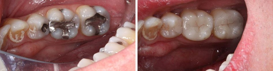 before and after crowns from Basalt Dentistry