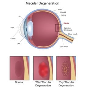 diagram of eye and macular degeneration