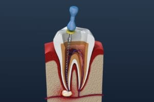 Root Canal Treatment Image