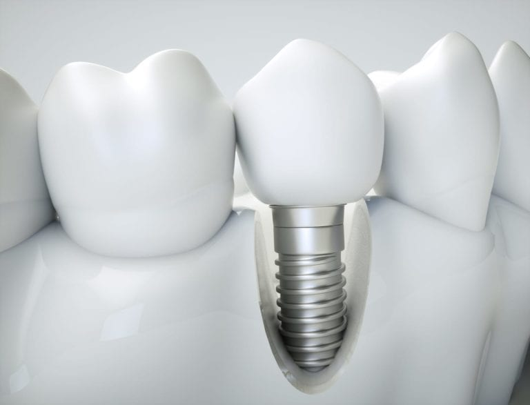 new teeth implant replacement image