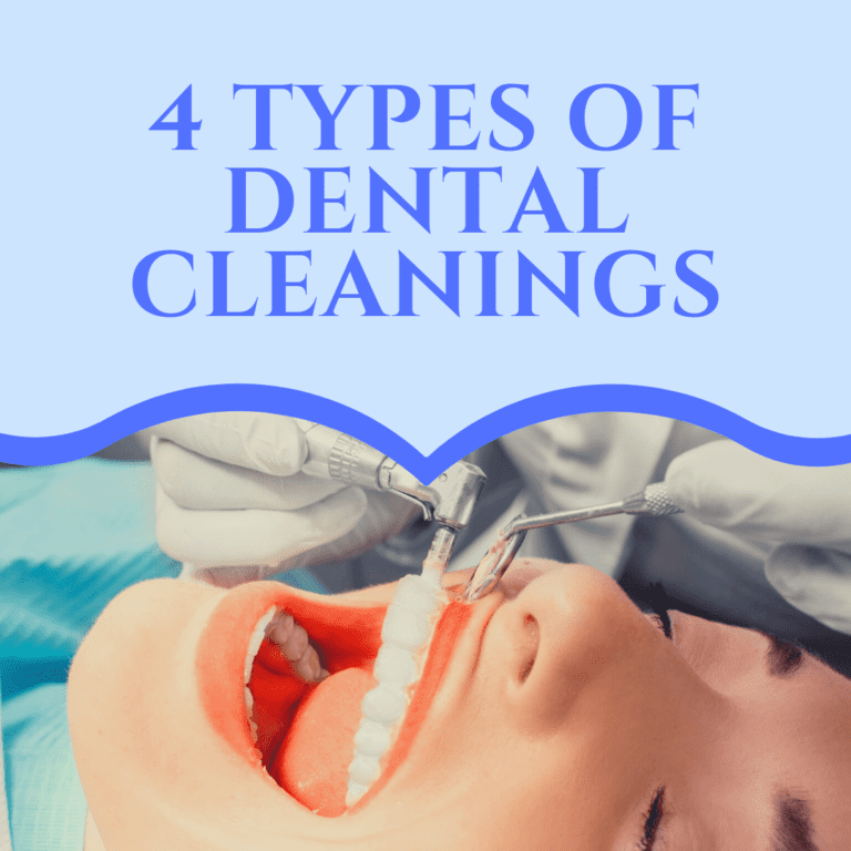 4 types of dental cleanings