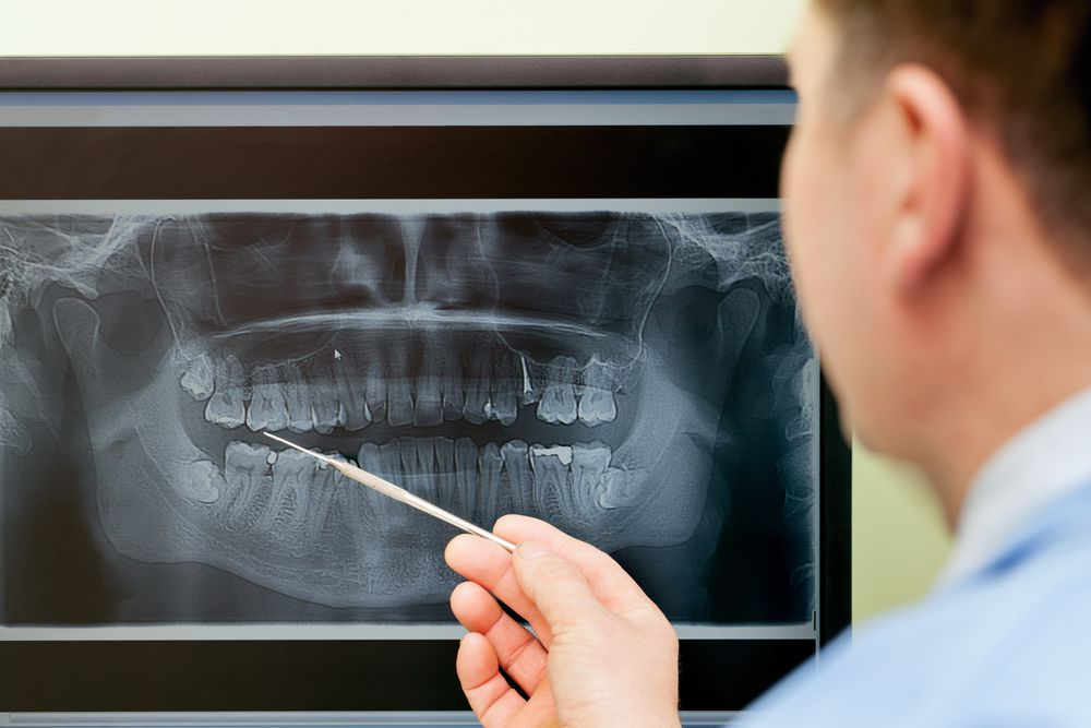 dentist pointing at x-ray of teeth