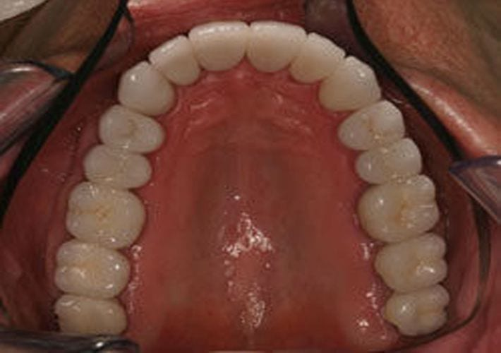 Picture of a Full Mouth Rehabilitation with no metal fillings