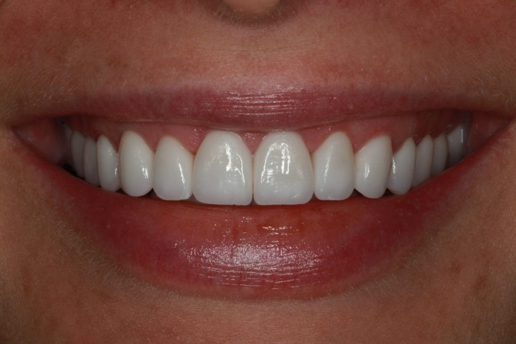 Picture of perfectly straight and white front teeth