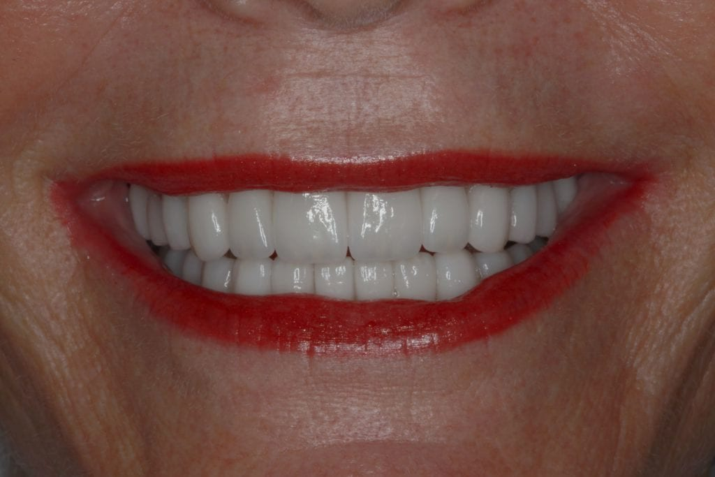 Close up of a perfectly straight and white teeth smile