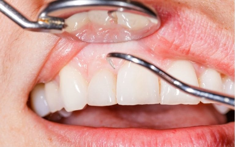 Mirror mouth and curette being used