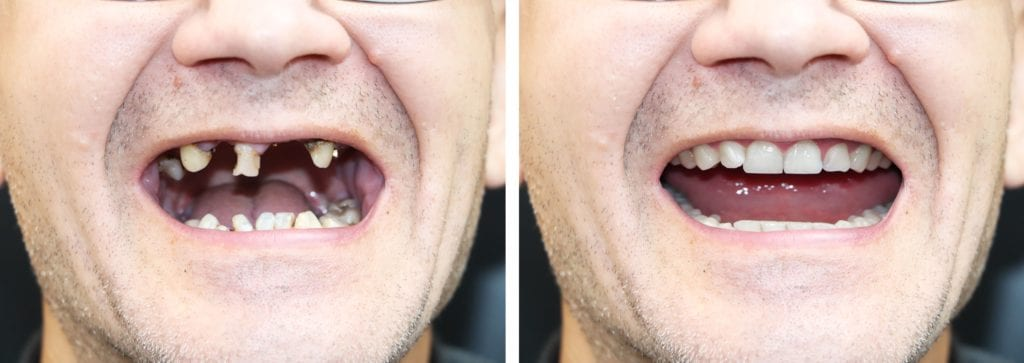 Before and after for a full mouth reconstruction