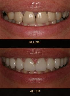 Before and after shot of teeth treated with cosmetic dentistry