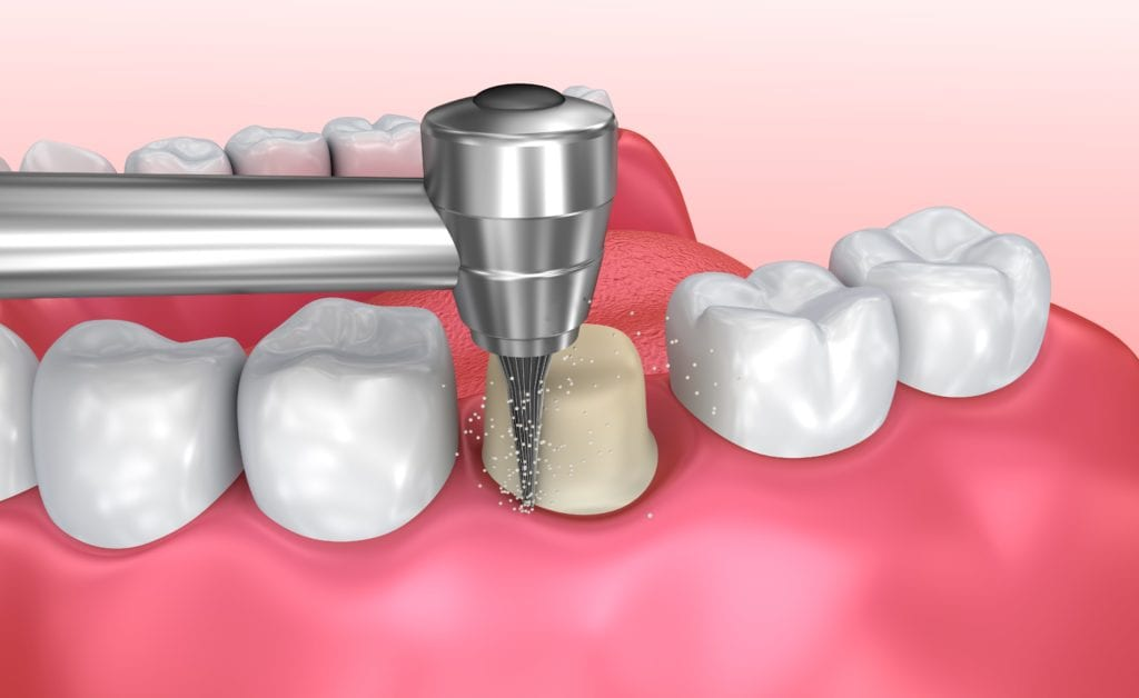 computerized image showing the preparation for a dental crown