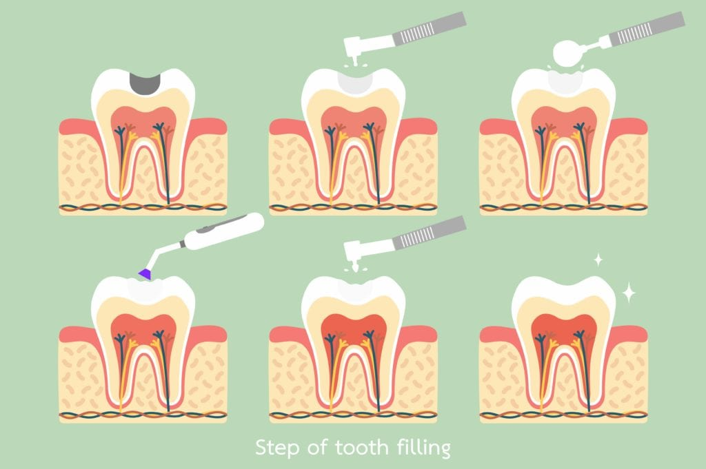 Steps of a tooth filling