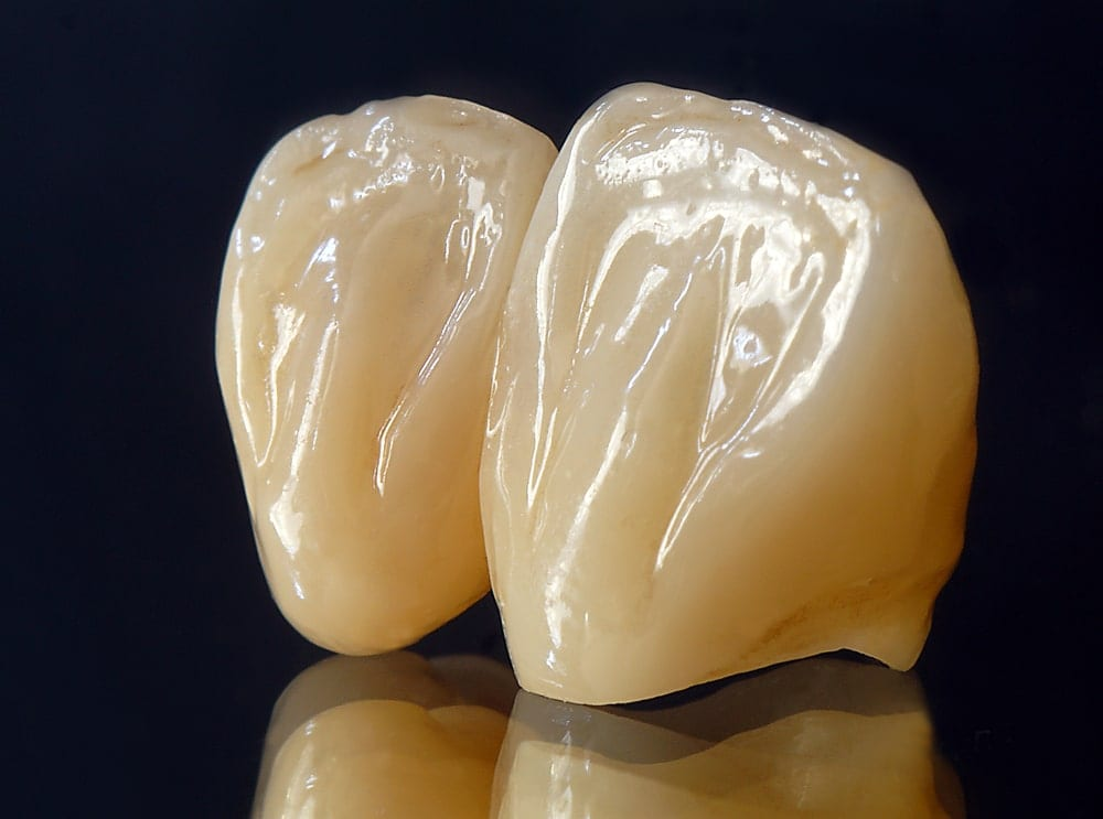 Two dental crowns on a navy background