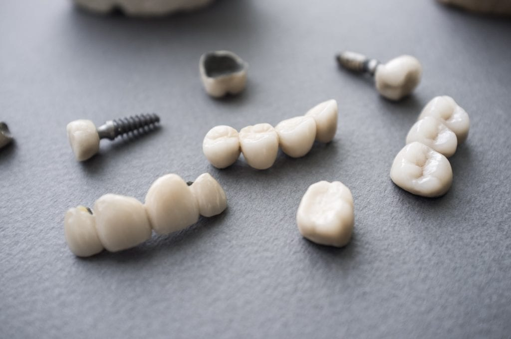 Dental implant restorations scattered on a black tabletop