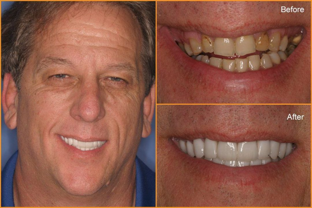 Close up of Man's teeth Before and After Dental Treatment