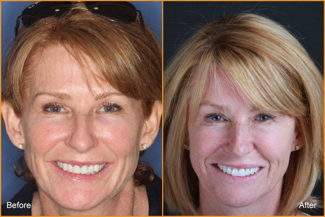 Full Face of woman Before and After Dental Treatment