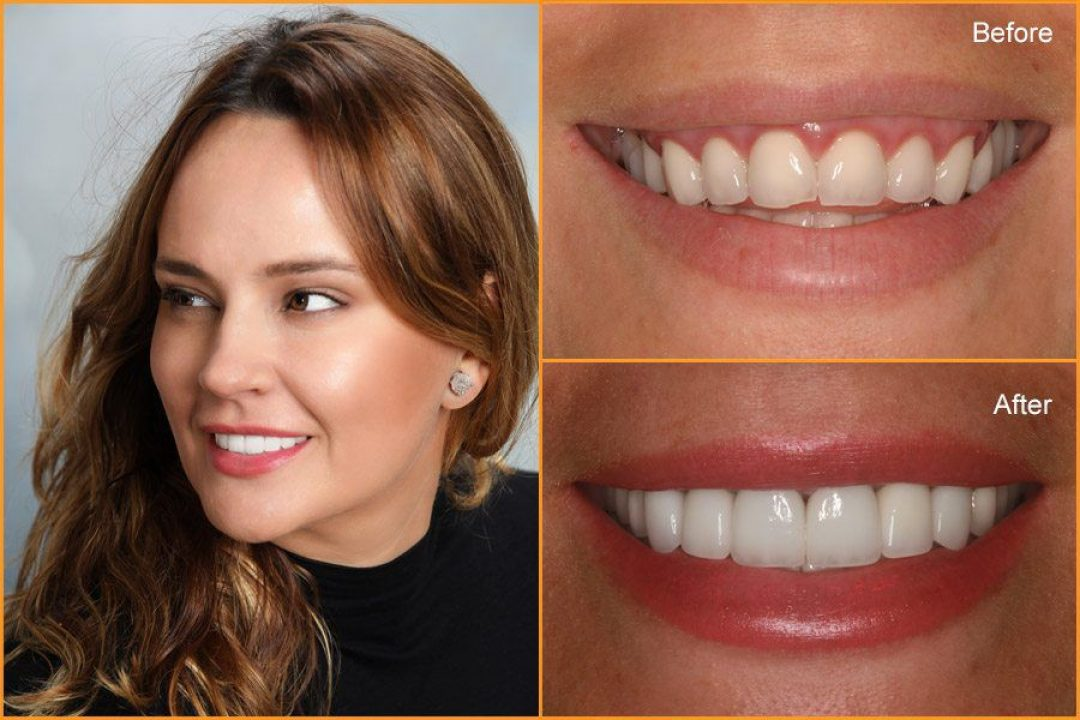 Close up of Woman's teeth Before and After Dental Treatment