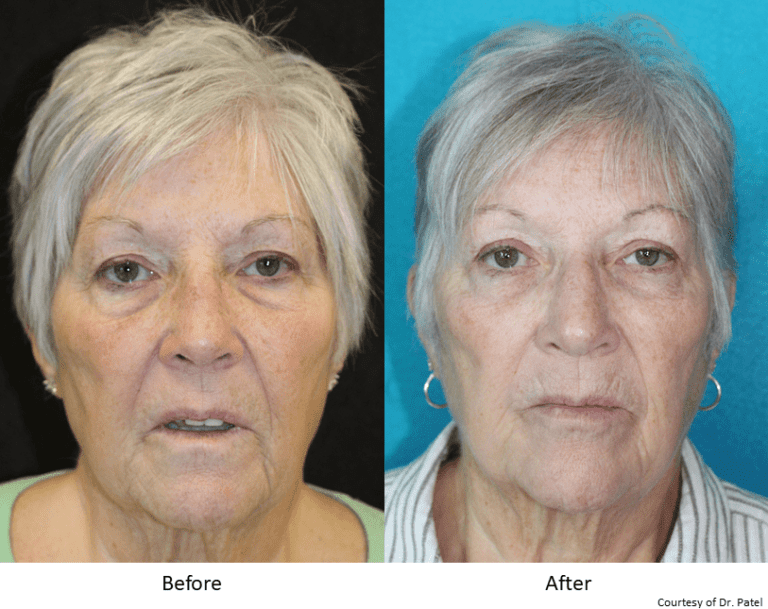 GB_blepharoplasty