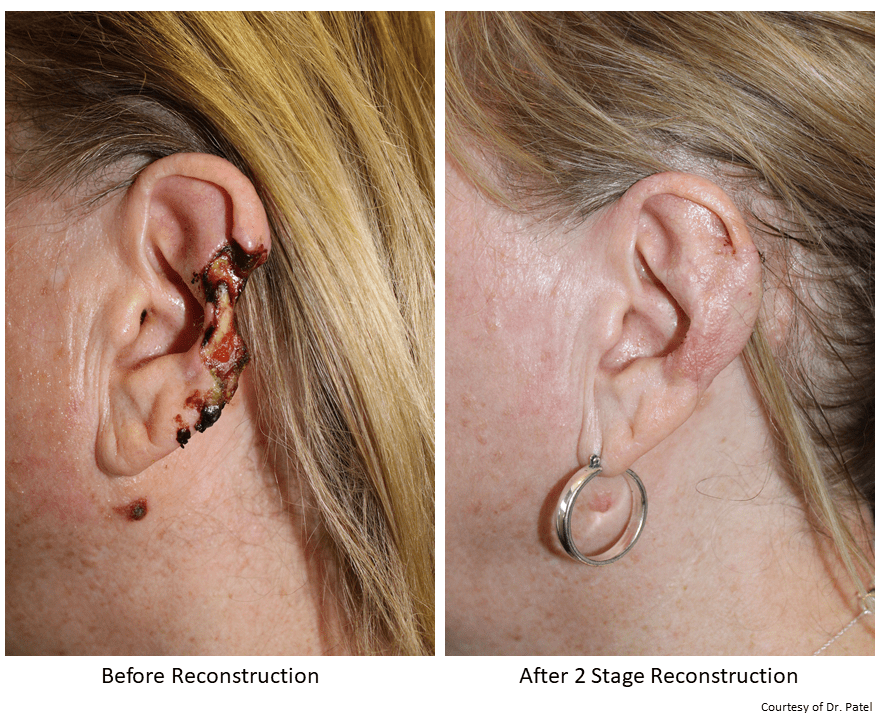 KT_ear-repair-sp-cancer-resection