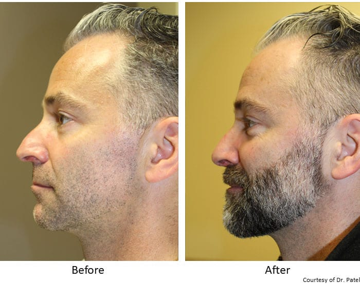 Rhinoplasty-Before-&-After--case-1-side