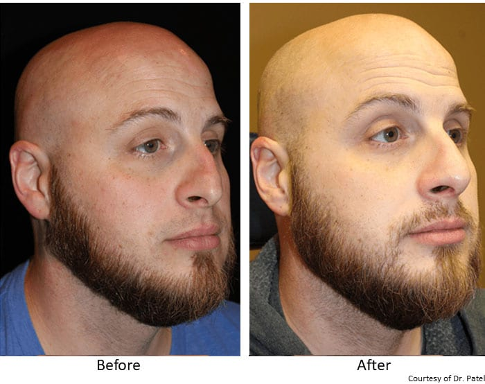 Rhinoplasty-Before-&-After--case-2-side-rev