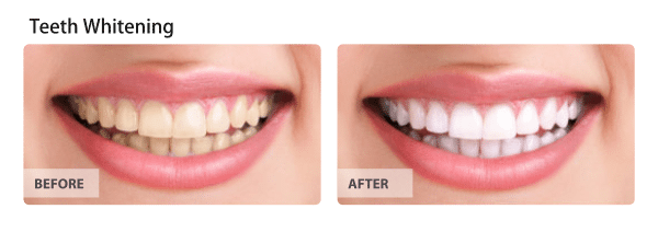 Teeth-whitening-1-1