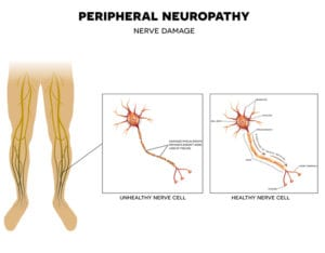 graphic of healthy and unhealthy nerve cells