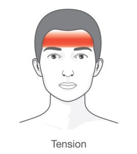 graphic of headache affected area