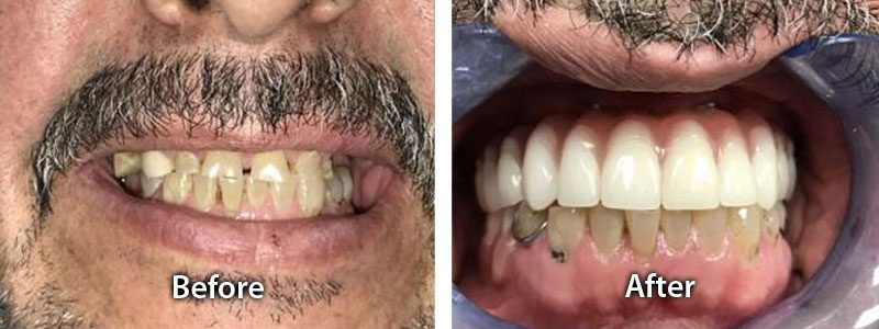 before after teeth images new teeth chicago dental implants