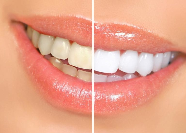 before and after closeup teeth whitening